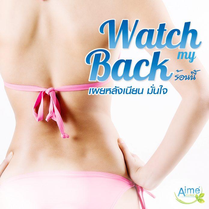 Watch my Back