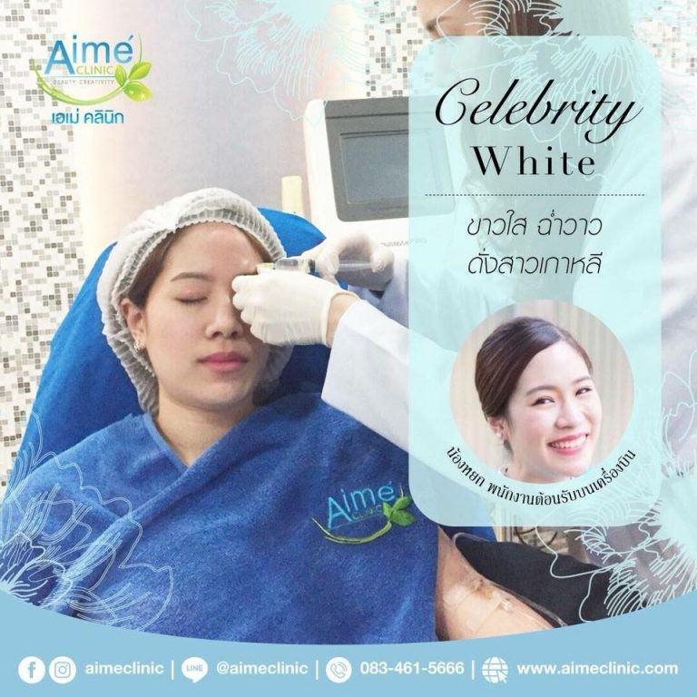 Aime Celebrity White