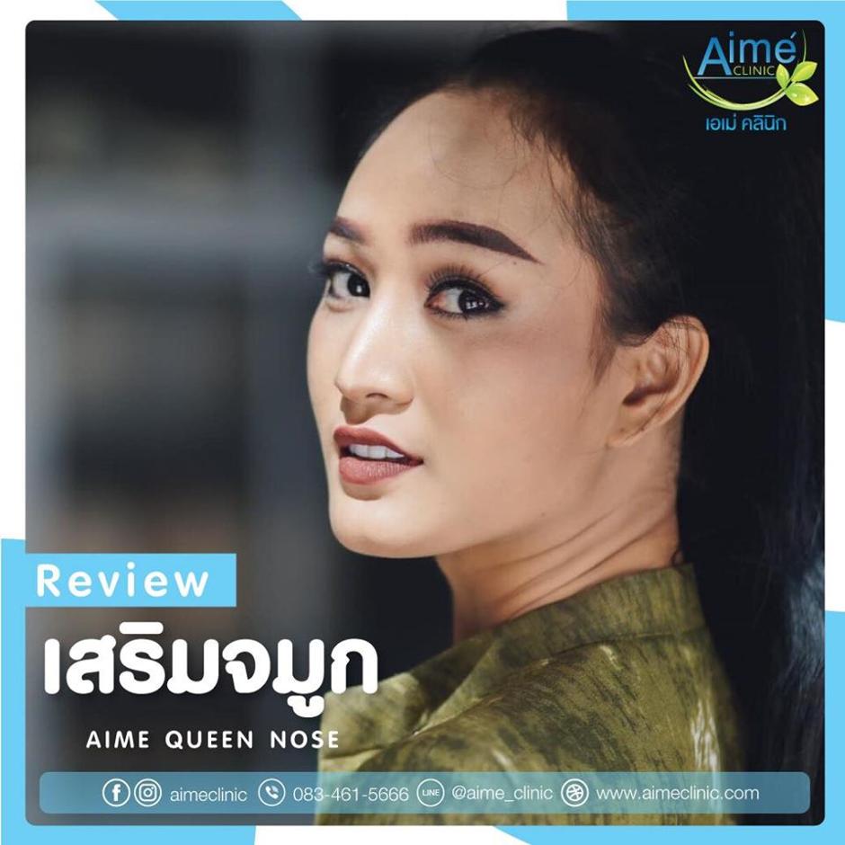 review เสริมจมูก